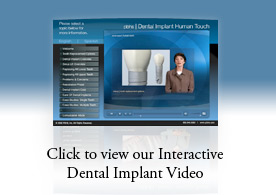 Click here to view our interactive dental implant video.